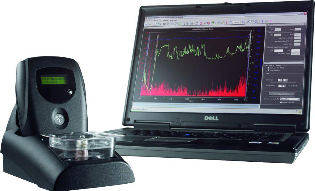Smartpill gi monitoring system brochure